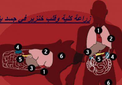אל-אזהר המצרי מנפיק פתווה להכשרת השתלת אברי חזיר בגוף אדם
